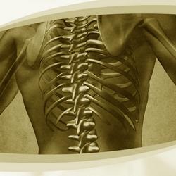 Pós em Fisioterapia nas Afecções da Coluna Vertebral - Faculdade Santa Casa de SP