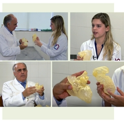 coracao_3d_cirurgia_cardiaca_faculdade_santa_casa_sp